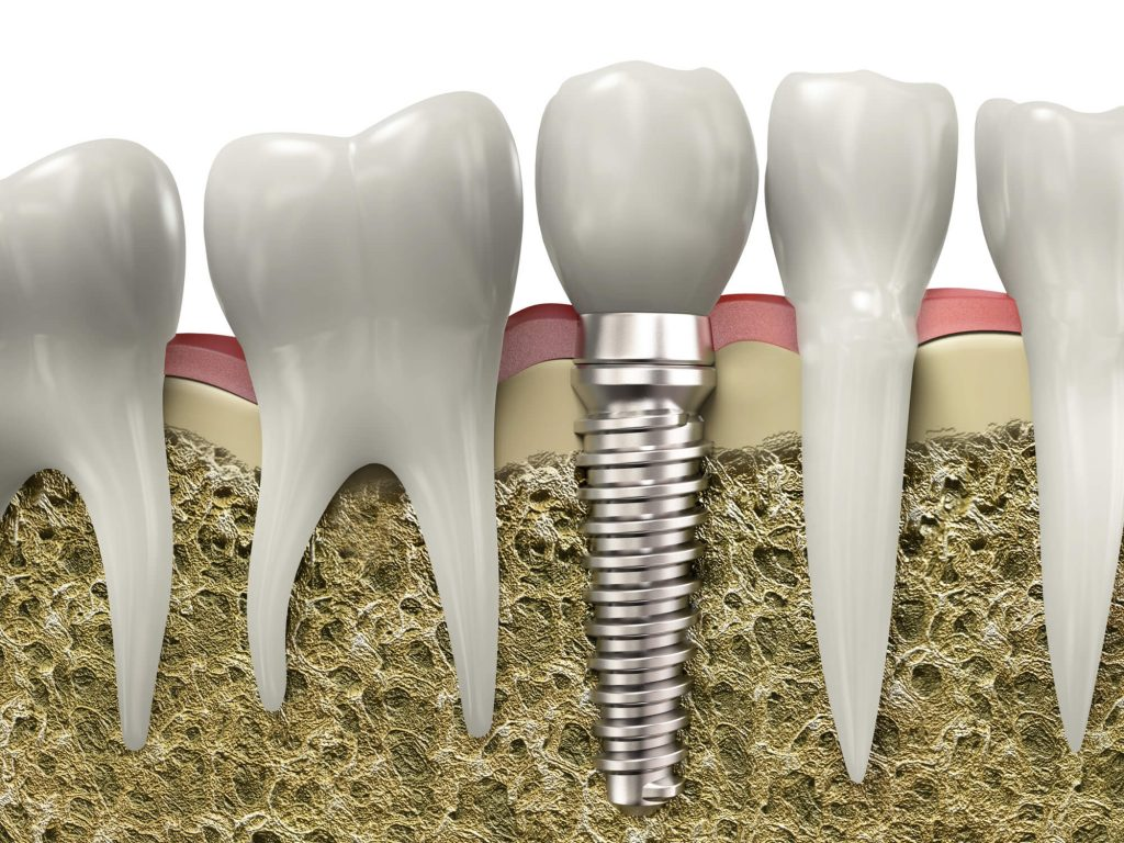 who offers dental implants Miami?