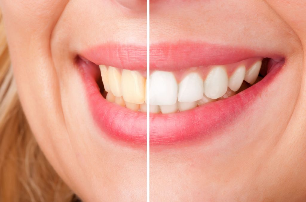 where is the best teeth whitening miami?
