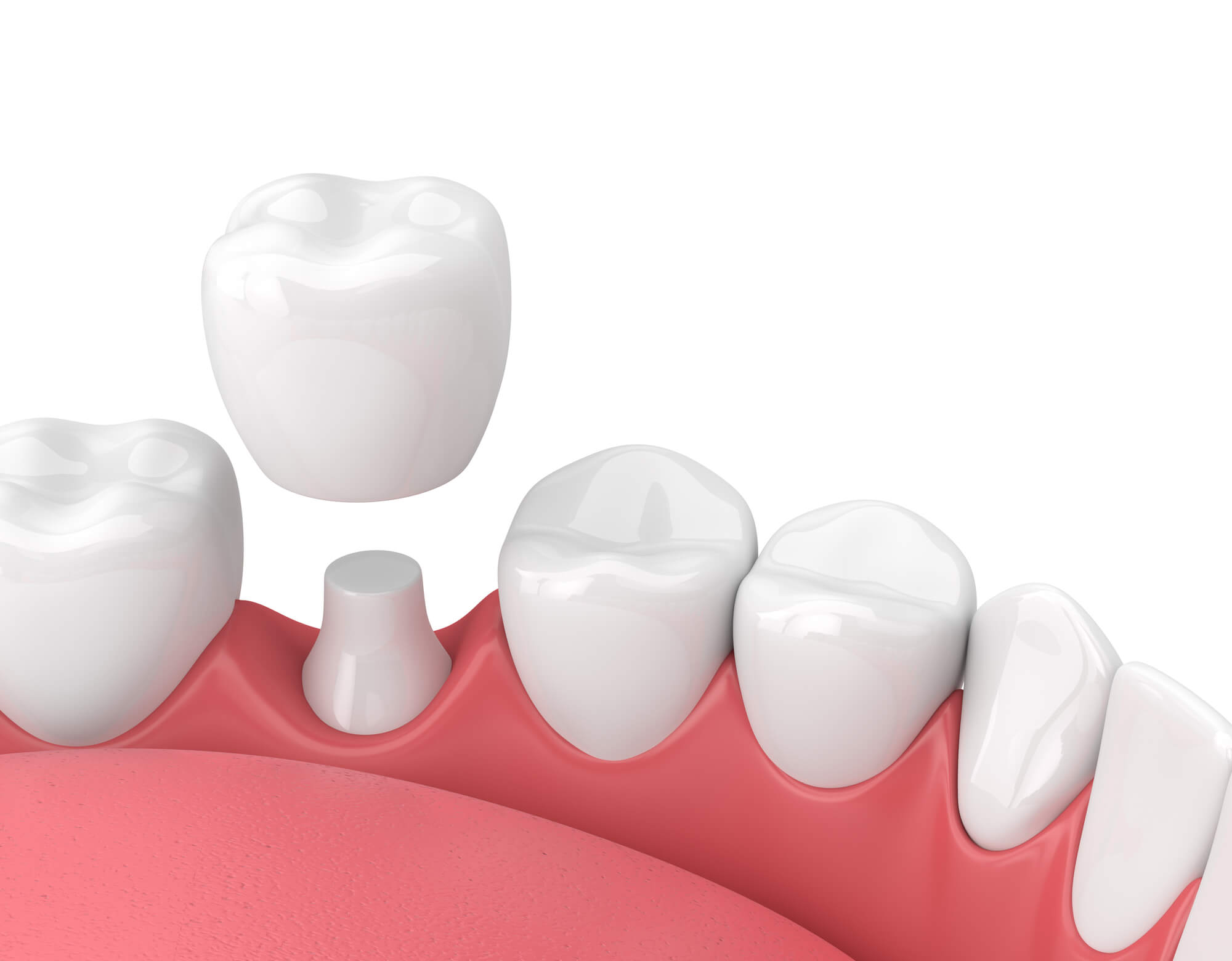 Who is the best Dentist Miami Airport?