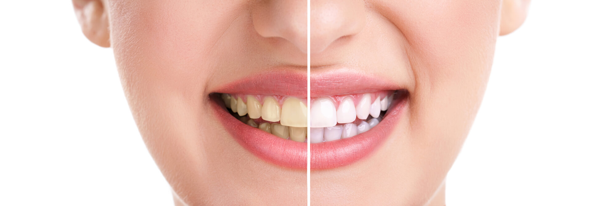 Where can I find teeth whitening in Miami?