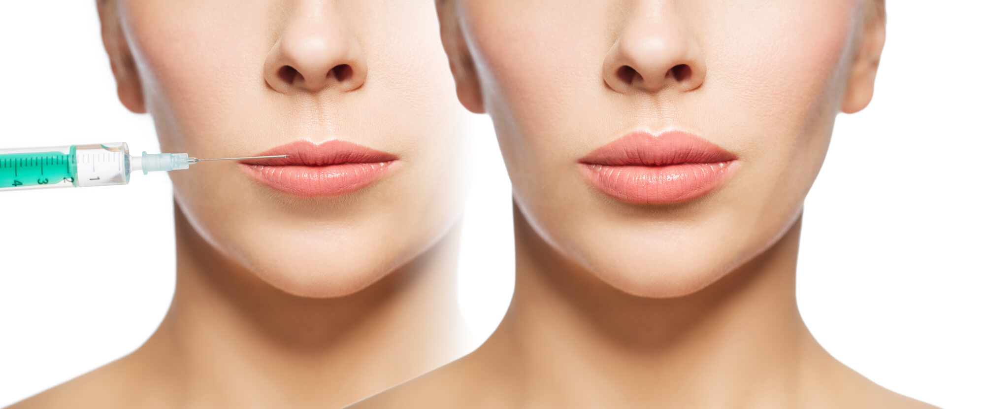 before and after lip fillers Miami